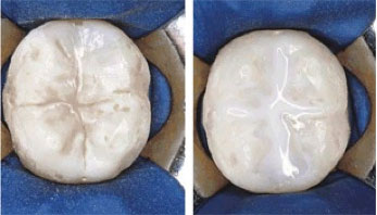 Dental Sealant Before and After